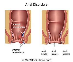 anal, désordres, eps8
