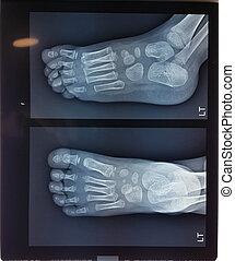jambe cassée, gosse, quand, plâtre, doctror, pieds, bébé, examiner