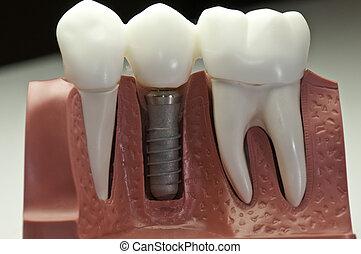 modèle, dentaire, implant, couvert