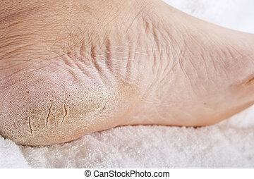 pieds, besoin, pédicure