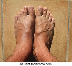 pieds, cassé, cheville, mens