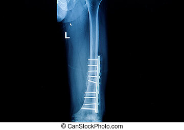 plaque, jambe, (, image, fémur, )with, scre, fracture, implant, rayon x