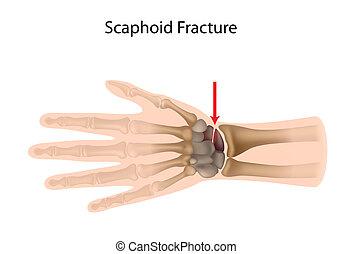 scaphoid, poignet, eps10, fracture